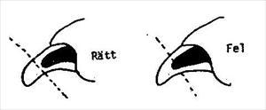 kloklippning (lånad bild)